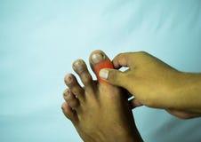Ο πόνος στην ένωση του μεγάλου toe μπορεί να είναι αποθαρρύνοντας στοκ φωτογραφίες