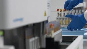 Ο τεχνικός εργαστηρίων προετοιμάζει τα δείγματα ούρων urinalysis στην αυτοματοποιημένη ιατρική συσκευή απόθεμα βίντεο