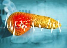 Πάγκρεας, όργανο ανθρώπινων σωμάτων με τη διάγνωση του καρκίνου, pancreatitis, σοβαρές ασθένειες ελεύθερη απεικόνιση δικαιώματος