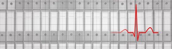 Πίεση στην εργασία Ρυθμός EKG, ECG διοικητικών καρδιών πίεσης Στοκ Εικόνες