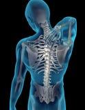 πίσω πόνος λαιμών Στοκ εικόνες με δικαίωμα ελεύθερης χρήσης