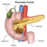 Παγκρεατική ιατρική απεικόνιση καρκίνου απεικόνιση αποθεμάτων