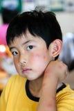 Παιδί με τα πολλαπλάσια δαγκώματα κουνουπιών στοκ εικόνα
