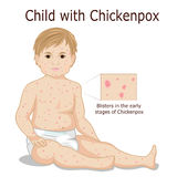 Παιδί με chickenpox Στοκ Φωτογραφίες