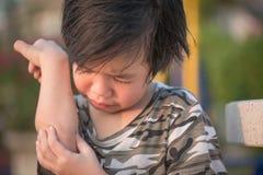 Παιδί που τραυματίζεται ασιατικό στον αγκώνα Στοκ Φωτογραφίες