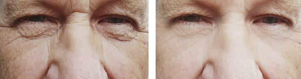 παλαιές ρυτίδες ματιών ατόμων πριν μετά από την αναζωογόνηση επεξεργασίας στοκ φωτογραφίες