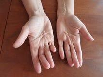 παραμορφωμένα χέρια Στοκ εικόνα με δικαίωμα ελεύθερης χρήσης