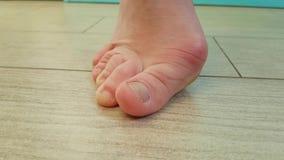 Παραμόρφωση της ένωσης στο πόδι φιλμ μικρού μήκους
