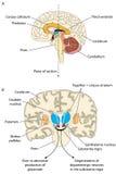 Παρκινσώνειος εγκέφαλος Στοκ Εικόνες