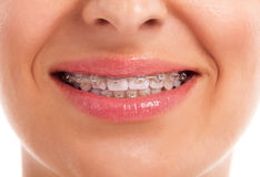 Παρουσίαση άσπρων δοντιών με τα στηρίγματα στοκ φωτογραφίες