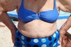 παχυσαρκία Στοκ Φωτογραφίες