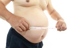 Παχύσαρκος ασθενής Στοκ Φωτογραφίες
