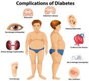 Περιπλοκές της έννοιας διαβήτη διανυσματική απεικόνιση