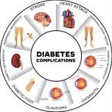 Περιπλοκές διαβήτη διανυσματική απεικόνιση