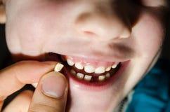 Πεσμένο δόντι στοκ φωτογραφία