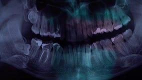 Πλήρης στοματική οδοντική των ακτίνων X ακτίνα X Μια ακτίνα X των δοντιών με ένα χέρι της μάγισσας γιατρών που δείχνει το α το δό απόθεμα βίντεο