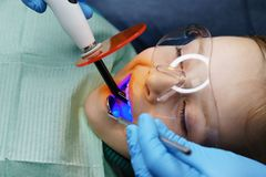 Πλήρωση των δοντιών γάλακτος κλινική οδοντική στοκ φωτογραφίες