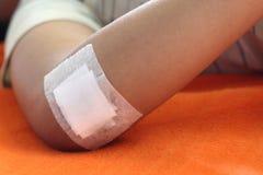 Πληγή που σφραγίζεται με το ασβεστοκονίαμα Στοκ Εικόνα