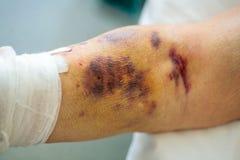 Πληγωμένο αρσενικό χέρι Μεγάλος μώλωπας στοκ φωτογραφίες