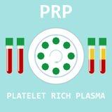 Πλούσιο πλάσμα αιμοπεταλίων Μέθοδος PRP διάνυσμα ελεύθερη απεικόνιση δικαιώματος