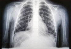 πνευμονία Στοκ Εικόνες