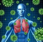 πνεύμονας μόλυνσης Στοκ Εικόνες