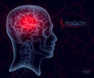 Πονοκέφαλος, των ακτίνων X του εγκεφάλου, διάνυσμα για την ιατρική Ένα πλαίσιο κρανίων, δημιουργική δημιουργική απεικόνιση Α σε έ Στοκ Φωτογραφίες