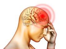 πονοκέφαλος διανυσματική απεικόνιση