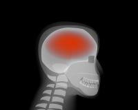 Πονοκέφαλος, κτύπημα, ασθένειες εγκεφάλου, Alzheimer ελεύθερη απεικόνιση δικαιώματος