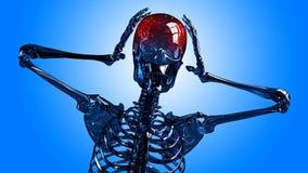 Πονοκέφαλος σκελετών στοκ εικόνες