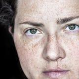 Πορτρέτο κινηματογραφήσεων σε πρώτο πλάνο της καυκάσιας γυναίκας με τις φακίδες και το διασπασμένο χείλι που εξετάζουν άμεσα τη κ στοκ εικόνα