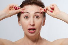 Πορτρέτο της συγκλονισμένης γυναίκας με τις ρυτίδες στο μέτωπο Έννοια εγχύσεων κολλαγόνων και προσώπου εμμηνόπαυση Καλλιεργημένη  στοκ εικόνες με δικαίωμα ελεύθερης χρήσης