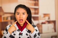 Πορτρέτο του νέου κοριτσιού με το πρόβλημα δερμάτων που αποκτάται έκπληκτο Στοκ εικόνα με δικαίωμα ελεύθερης χρήσης