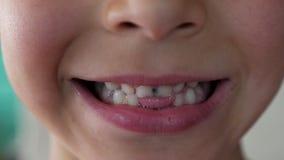 Πορτρέτο του 6χρονου αγοριού με τα κακά σάπια δόντια φιλμ μικρού μήκους