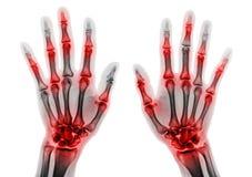 Πολλαπλάσια ένωση αρθρίτιδας των δάχτυλων Ακτίνα X ταινιών και των χεριών και των καρπών Στοκ Εικόνα