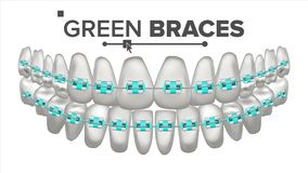 Πράσινο διάνυσμα στηριγμάτων παιδιών Δόντι και οδοντικά στηρίγματα ανθρώπινο σαγόνι τρισδιάστατη ρεαλιστική απομονωμένη απεικόνισ διανυσματική απεικόνιση