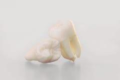 Πραγματικά ανθρώπινα δόντια φρόνησης Στοκ Φωτογραφία