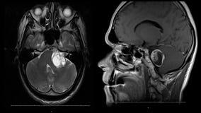 Πραγματική ανίχνευση mri εγκεφάλου ατόμων με όγκων νεοπλάσματος την ιατρική ζωτικότητα αποθεμάτων μήκους σε πόδηα επιστήμης 4k πο απόθεμα βίντεο