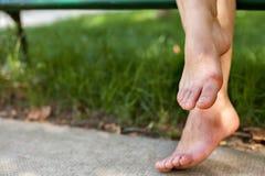 Πρησμένα κουρασμένα πόδια στοκ φωτογραφία με δικαίωμα ελεύθερης χρήσης