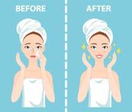 Πριν από-μετά από το σύνολο και ευτυχούς γυναίκας με το θηλυκό του προσώπου δέρμα τα προβλήματα πρέπει να φροντίσουν για: σπυράκι Στοκ Εικόνες