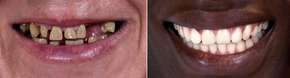 Πριν και μετά από στοκ εικόνα