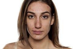 Προβληματικό δέρμα στοκ φωτογραφία με δικαίωμα ελεύθερης χρήσης