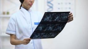 Προσεκτικός θηλυκός νευροχειρουργός που εξετάζει την ακτίνα X σκαφών εγκεφάλου, που αναλύει τα αποτελέσματα απόθεμα βίντεο