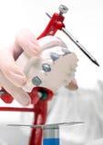 Προσθετική, orthodontics, οδοντικό Στοκ Φωτογραφίες