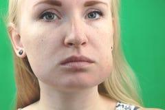 Πρόβλημα δοντιών Gumboil, ροή και διόγκωση του μάγουλου Κινηματογράφηση σε πρώτο πλάνο του όμορφου λυπημένου κοριτσιού που πάσχει στοκ εικόνες με δικαίωμα ελεύθερης χρήσης