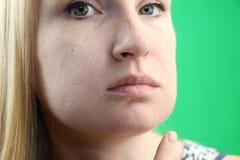 Πρόβλημα δοντιών Gumboil, ροή και διόγκωση του μάγουλου Κινηματογράφηση σε πρώτο πλάνο του όμορφου λυπημένου κοριτσιού που πάσχει στοκ εικόνες