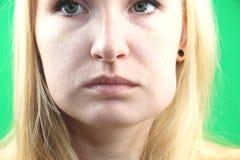Πρόβλημα δοντιών Gumboil, ροή και διόγκωση του μάγουλου Κινηματογράφηση σε πρώτο πλάνο του όμορφου λυπημένου κοριτσιού που πάσχει στοκ εικόνα