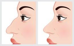 Πρόσωπο γυναικών πριν και μετά από τη χειρουργική επέμβαση μύτης Στοκ Φωτογραφίες