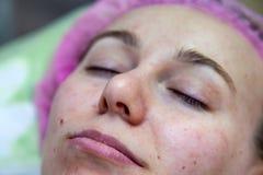 Πρόσωπο ενός νέου κοριτσιού μετά από τις cosmetological διαδικασίες και να καθαρίσει προσώπου σε ένα ρόδινο καπέλο για να προστατ στοκ φωτογραφία