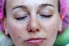 Πρόσωπο ενός νέου κοριτσιού μετά από τις cosmetological διαδικασίες και να καθαρίσει προσώπου σε ένα ρόδινο καπέλο για να προστατ στοκ εικόνα